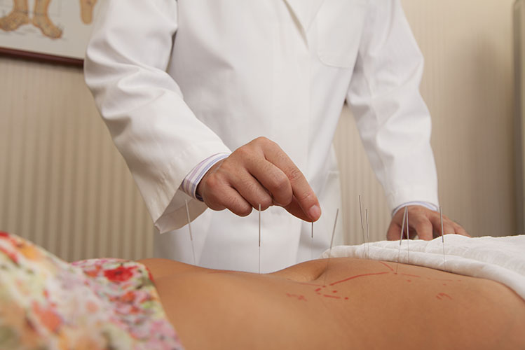 doctor inserting acupuncture needles