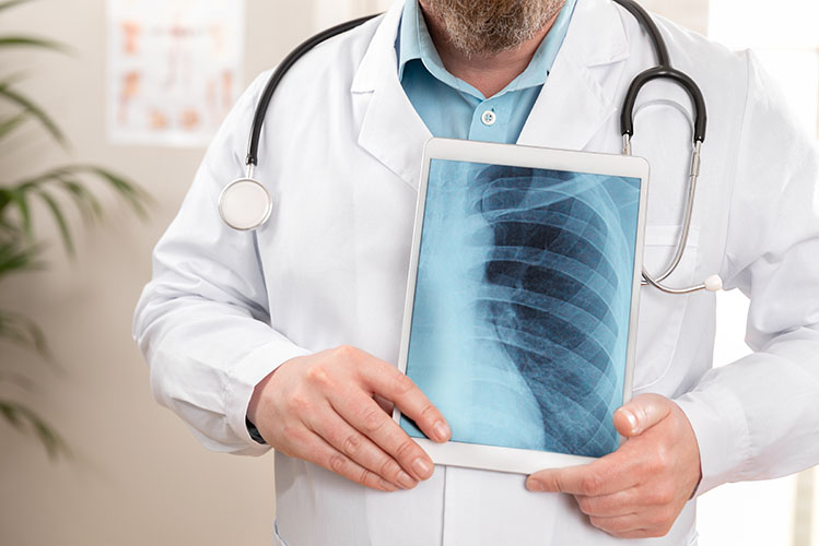 doctor showing a lung x-ray