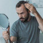 man with alopecia hair loss